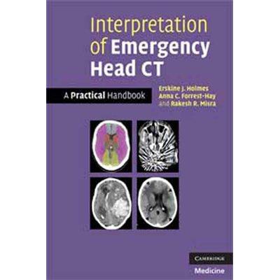 Interpretation of Emergency Head CT (AMAZON)