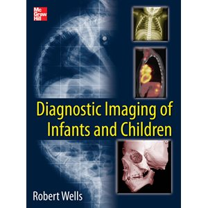 Diagnostic Imaging of Infants and Children (2 volume set) (AMAZON)